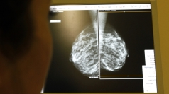 'Unaffordable' breast cancer drug set to be blocked