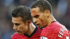 Rio Ferdinand after being hit by a coin.