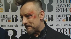 Boy George sports bloody eye make-up on Brits red carpet
